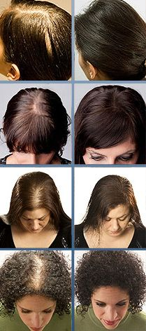 Thicken Hair, Thinning Hair, Makeup Artist, Hair Dresser, Keratin, Hair, Protein, Kerafiber, Must have